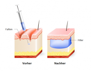 Beispiel von Faltenunterspritzung mit Hyaluronsäure