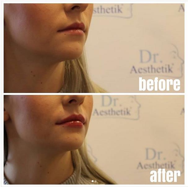 Lippen aufspritzen von Dr. Böpple