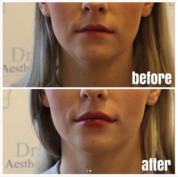 lippenvergrößerung mit hyaluronsäure stuttgart