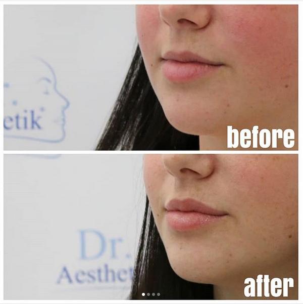 Lippen vergrößern Juvederm Ultra Smile Seitenansicht