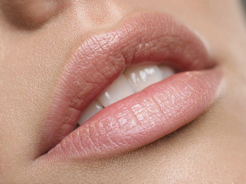 Lippen aufspritzen Nahaufnahme