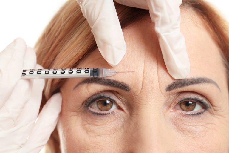 Stirnfalten-, Kraehenfüsse-, Zornesfalten- Behandlung mit Botox