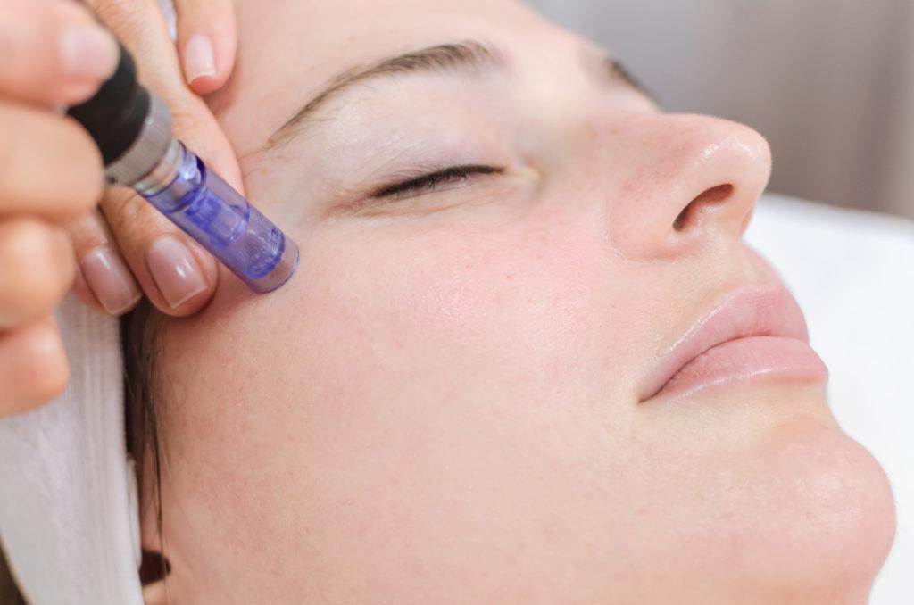 Microneedling Behandlung im Gesicht