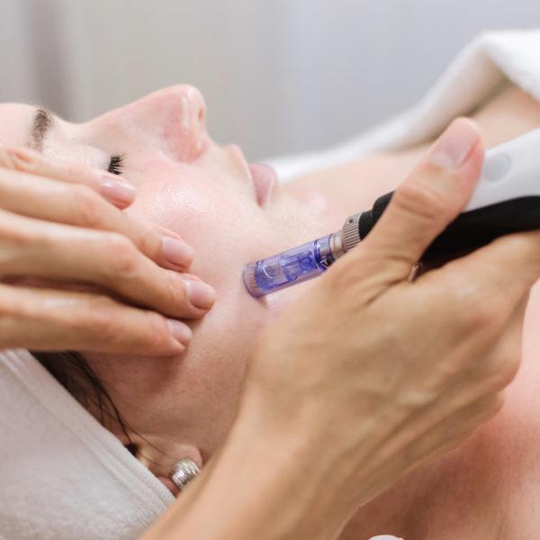Microneedling Gesichtsbehandlung mit Geraet