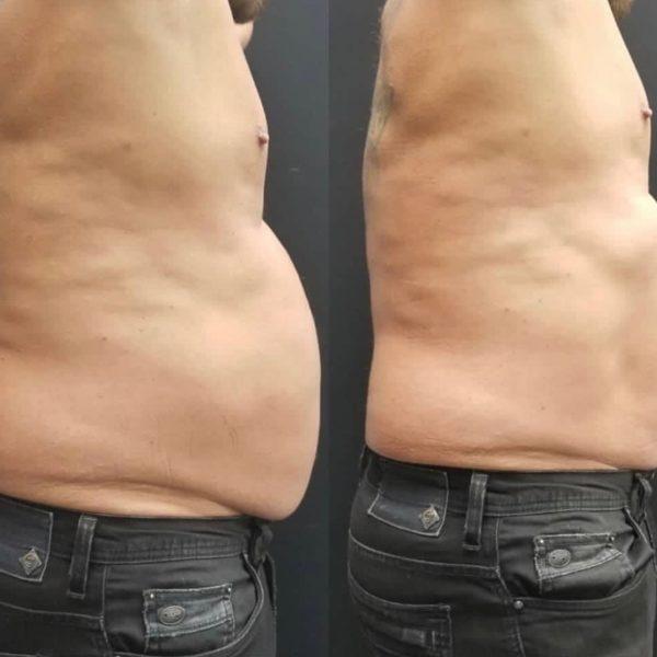 EmSculpt-Behandlung Mann Bauch Vorher Nachher