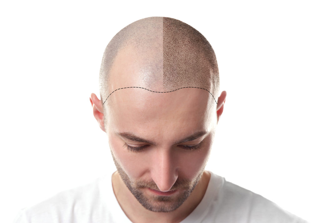 Haarausfall Behandlung sowie Haar, Bart und Augenrauen Transplantation